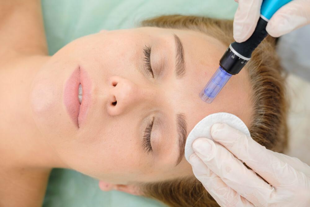 dermapen tretman lica