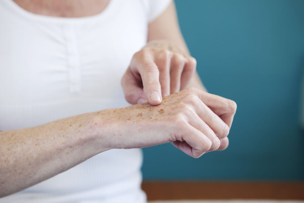 podmlađivanje ruku