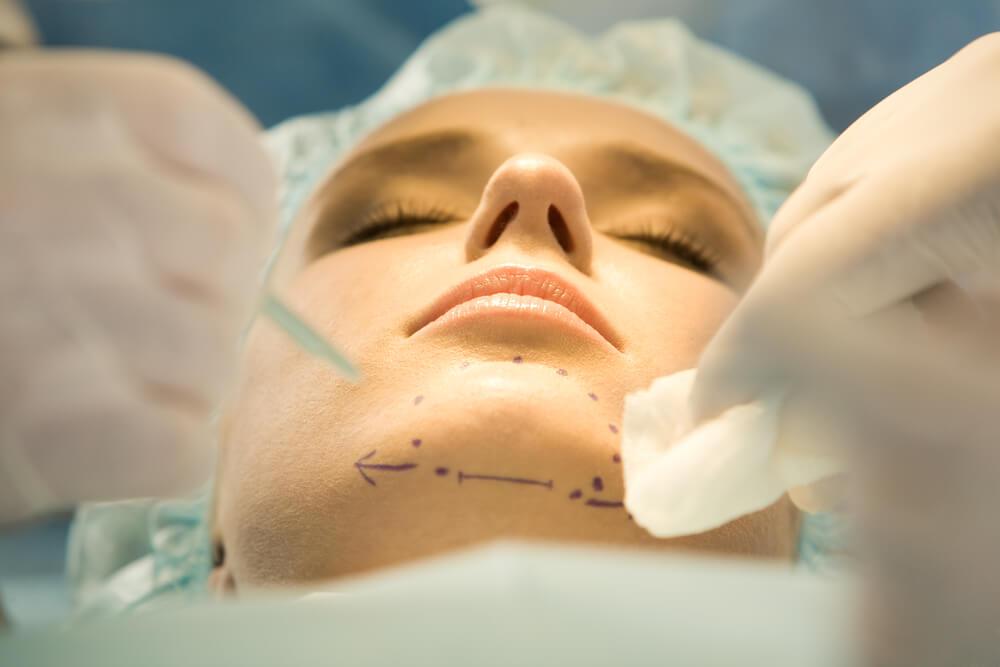 operacija brade