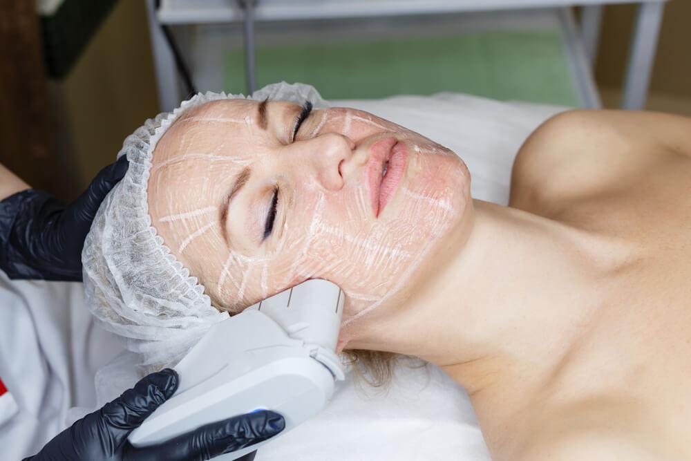 hifu tretman lica