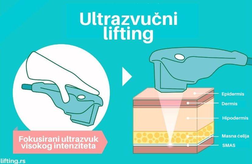ultrazvucni piling slike