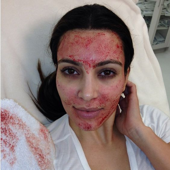 kim kardasijan vampirski tretman