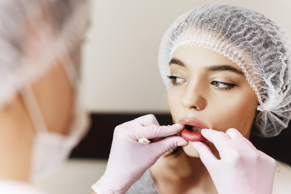implantati za usne slike